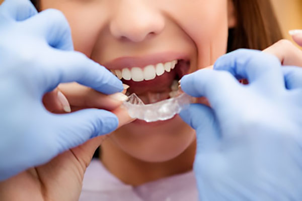 At What Age Can A General Dentist Administer Invisalign To Patients?