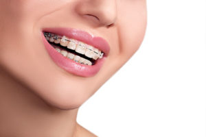 What You Need To Know About Lingual Braces