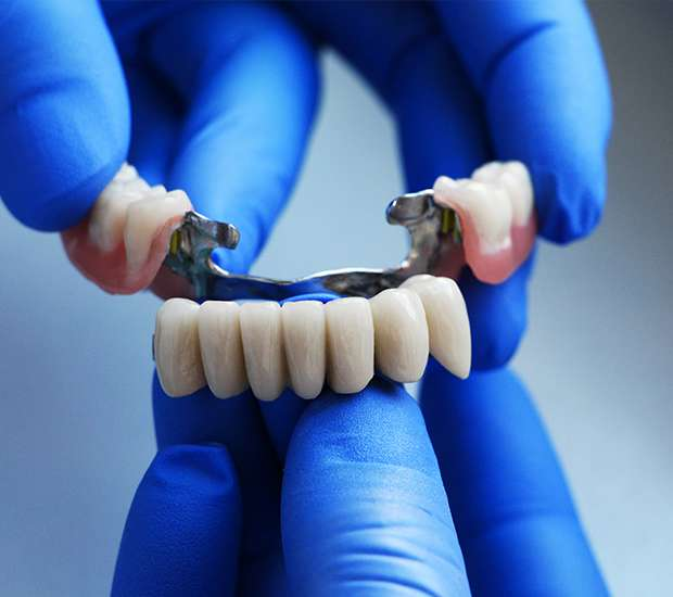 Bakersfield Dental Bridges