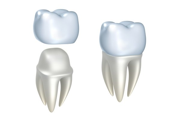 Bone Regeneration: How It Is Used For Dental Implants