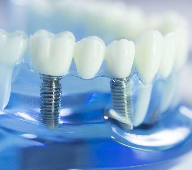 Bakersfield Dental Implants