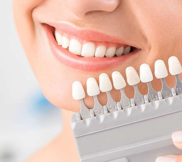 Bakersfield Dental Veneers and Dental Laminates