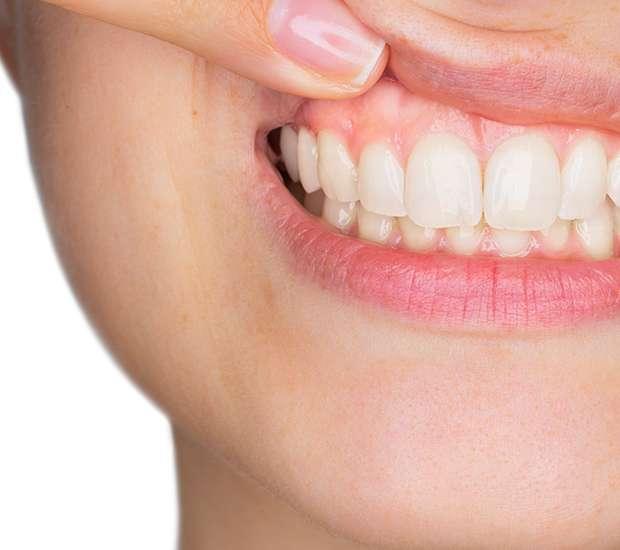 Bakersfield Gum Disease