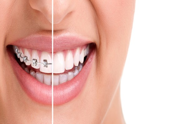 A Look At Some Of The Fastest Orthodontics Options For Straightening Teeth