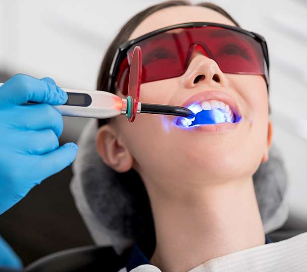 Bakersfield Professional Teeth Whitening