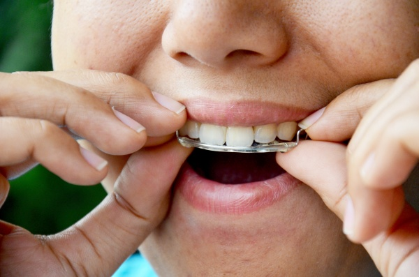 How A General Dentist Can Help With Common Orthodontic Bite Problems