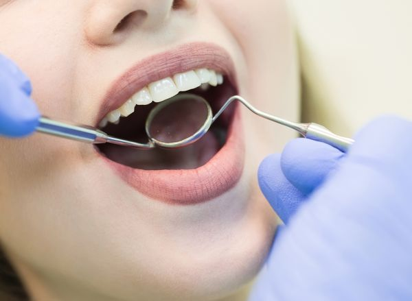 Smile Makeover Options For Overcrowded Teeth