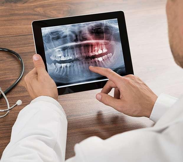 Bakersfield Types of Dental Root Fractures