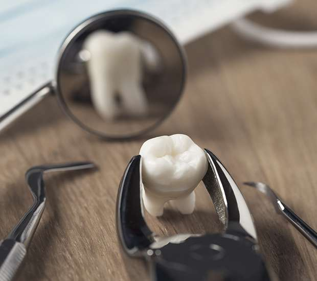Bakersfield When Is a Tooth Extraction Necessary